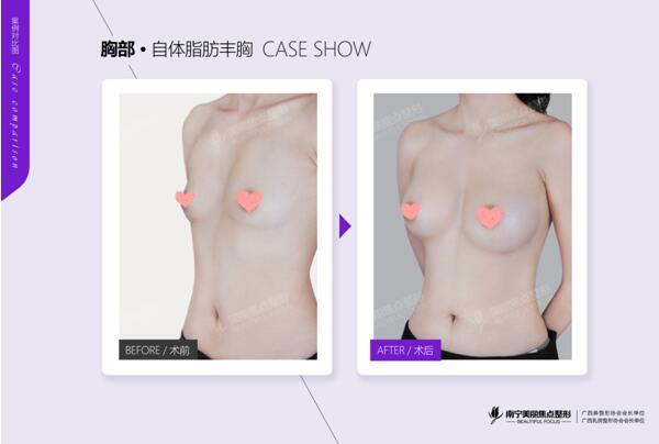 美国麦格晶面美胸假体植入手术在南宁美丽焦点完成国内初次性感蜕变!